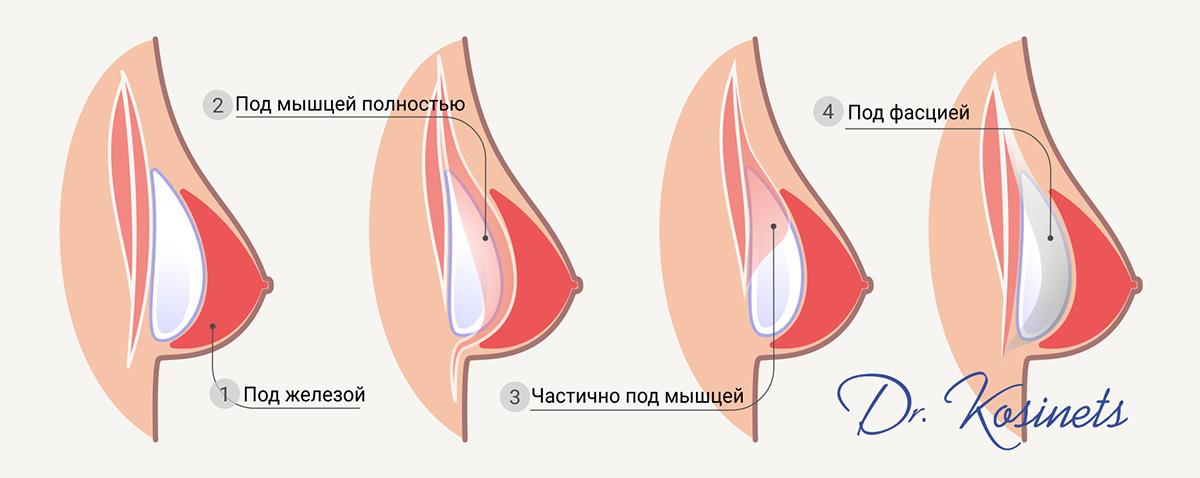 грудь размещение импланта