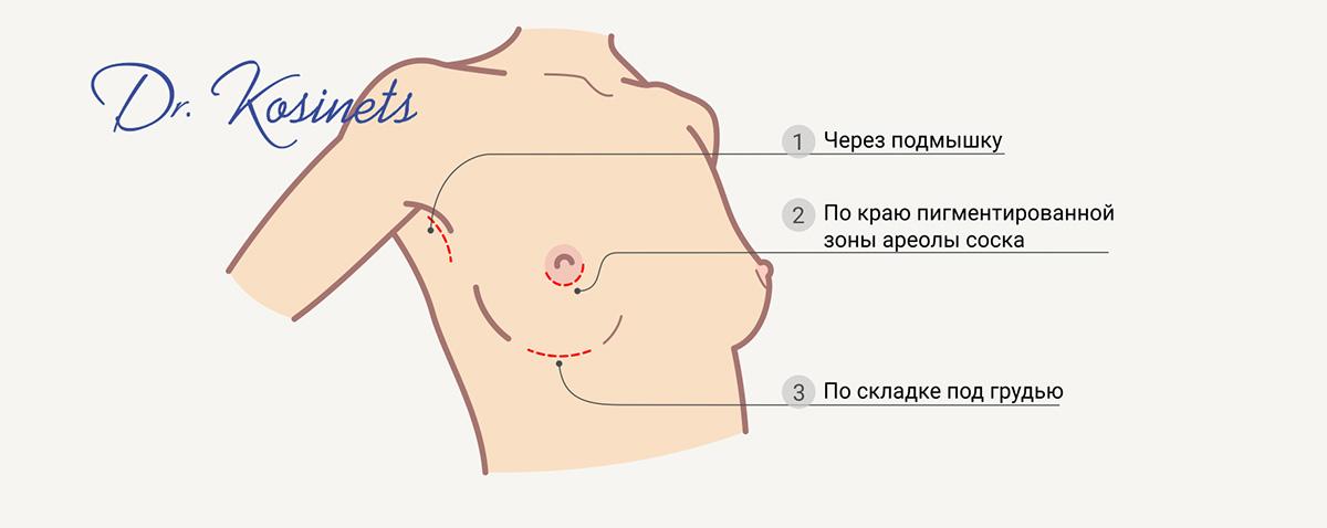 увеличение груди разрезы