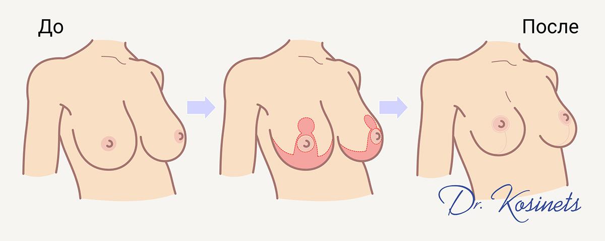 подтяжка и уменьшение груди минск