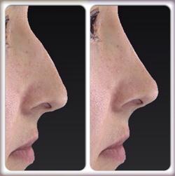 корректировка горбинки носа