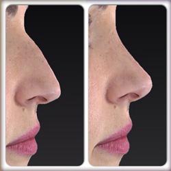 ринопластика горбинки носа