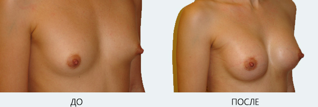Фото до и после подтяжки и увеличения груди
