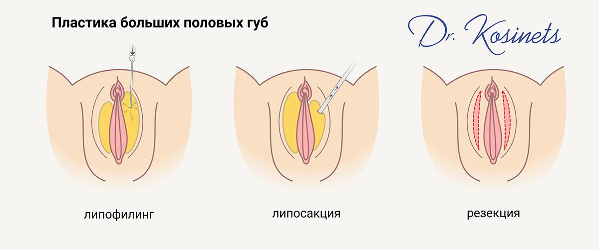 увеличение больших половых губ минск разрезы