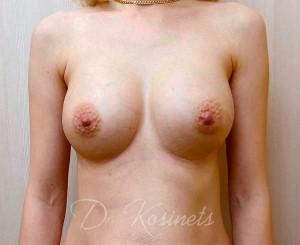 увеличение груди в минске фото после 13.02.2019