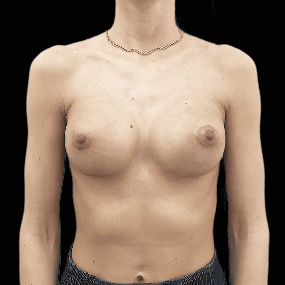 увеличение груди в минске фото до 13.02.2019